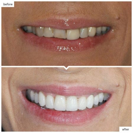 top photo of a damaged tooth, bottom photo is the tooth fixed with a porcelain crown