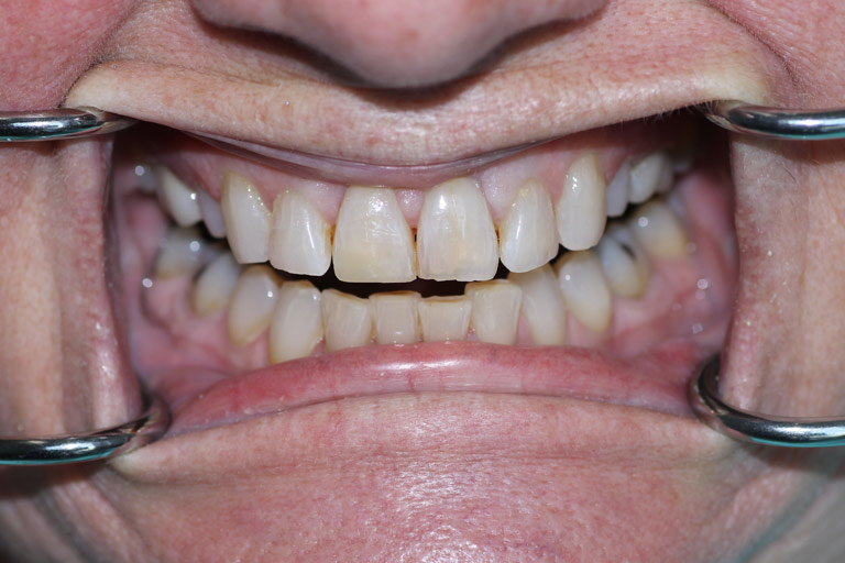 http://Man%20smile%20after%20broken%20tooth%20fixed
