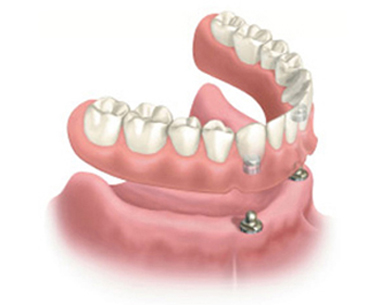 Implant overdenture - snap-on denture with the denture hovering above the implants