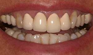 Person smiling showing their top and bottom teeth, shows 11 bottom teeth and 13 top teeth.