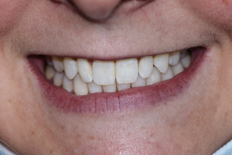 Woman smile after teeh whitening