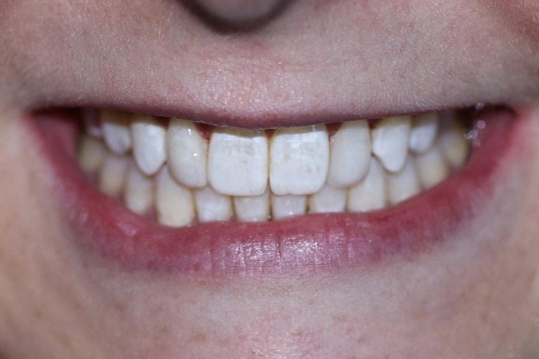 Woman smile before teeth whitening