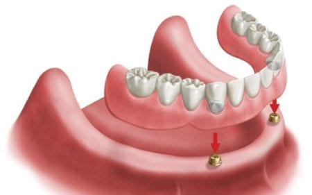 drawing of a lower denture being placed over two implants toward the front of a lower jaw